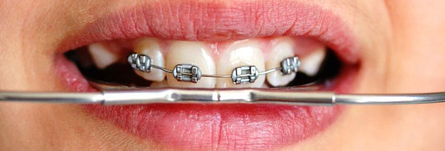 Effectuer une orthodontie adulte